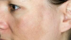 Foto: Tratamento Despigmentante/Aclarador